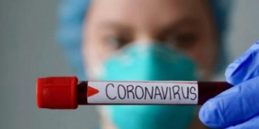 Рекомендації основних санітарно-гігієнічних та протиепідемічних заходів, направлених на запобігання поширенню на території області коронавірусу COVID-19 в закладах торгівлі.