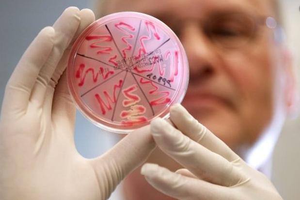 Сибірка: що потрібно знати про небезпечне інфекційне захворювання