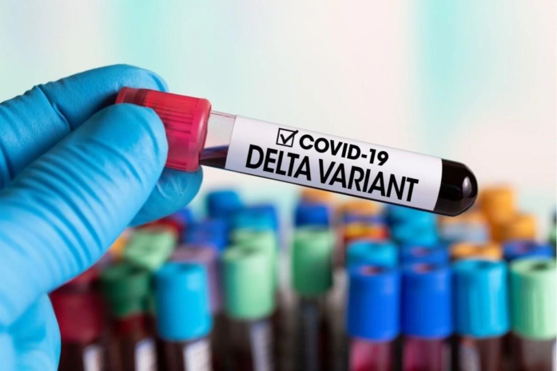 """""""Дельта плюс"""". Чим небезпечний новий штам коронавірусу?"""
